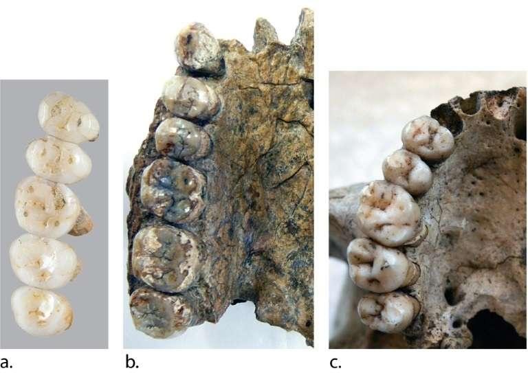 Comparaison entre des dentitions, sur l'île de Luçon le 15 mars 2019. © Florent DETROIT - Florent DETROIT/AFP/Archives
