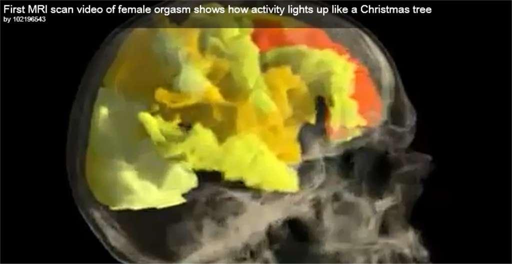 «Une activité qui s'allume comme un arbre de Noël» annonce le commentaire de la vidéo réalisée par l'équipe de l'université Rutgers. (La séquence complète est visible dans la vidéo ci-dessus). © Barry R. Komisaruket al./YouTube
