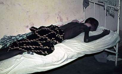 Photo : 3 - Malade en phase terminale de la maladie du sommeil (coma évoluant vers la mort) © Gérard Duvallet.