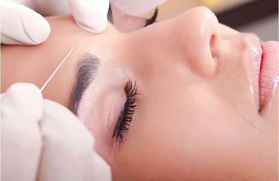 Il est important d'établir un rapport de confiance fort avec son praticien avant un acte de médecine esthétique, comme l'injection de Botox. © DR