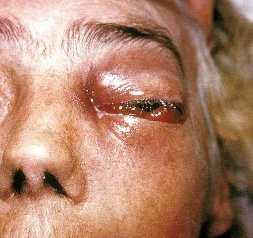 Un œil nécrosé à cause d'une mucormycose. © Domaine public