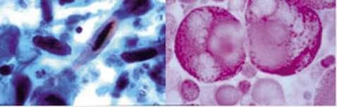 Métastase dans l'ovaire, tumeur du sein, cancer invasif du col utérin, gonadoblastome d'un testicule… Autant de maladies liées au genre, qui partagent certains points communs. © Inserm - Reproduction et utilisation interdites