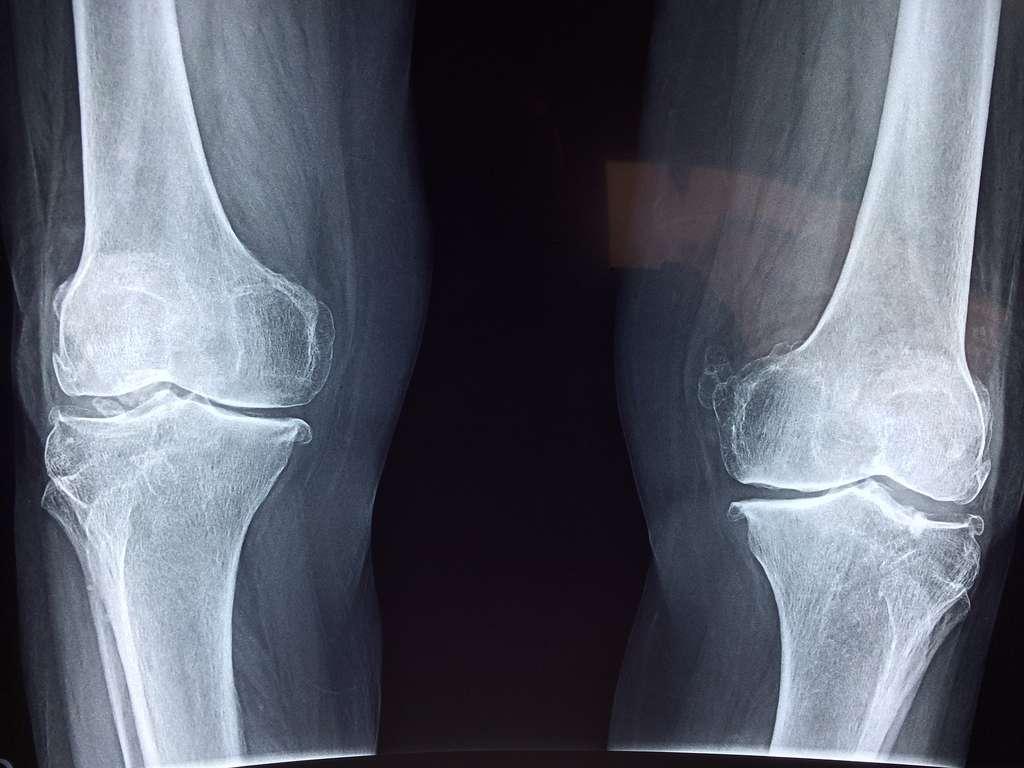 Les tumeurs osseuses représentent moins de 1 % du nombre total de cancers. © Pixabay