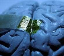 Le réseau d'électrodes, gravées sur un support souple, vient se coller intimement sur la surface du cerveau (ici un modèle factice). L'activité cérébrale peut ainsi être suivie en continu, à la milliseconde près et avec une résolution spatiale inférieure au millimètre. © John Rogers
