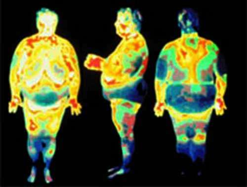 Thermométrie de l'obésité