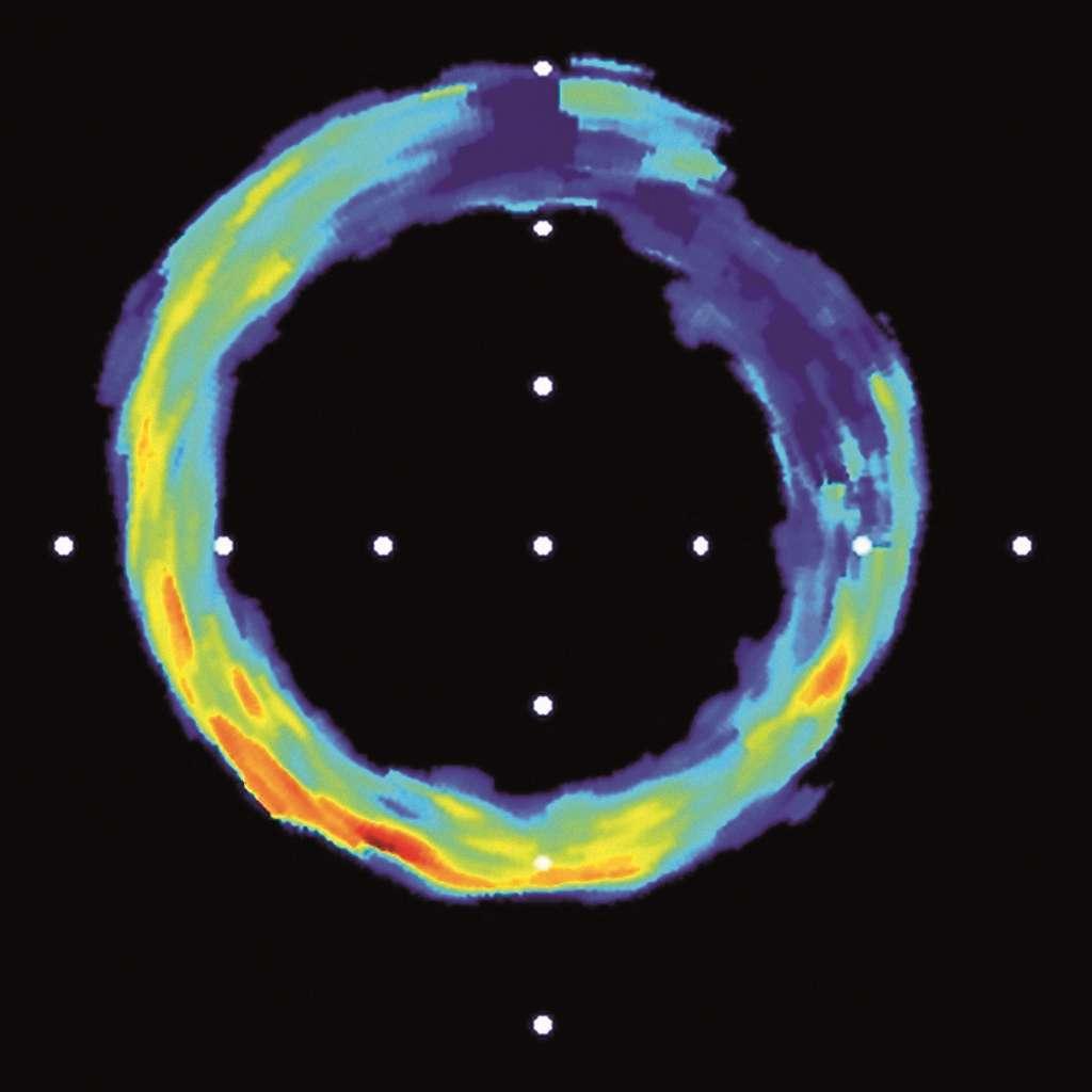Coupe transversale d'une artère humaine obtenue grâce aux ultrasons