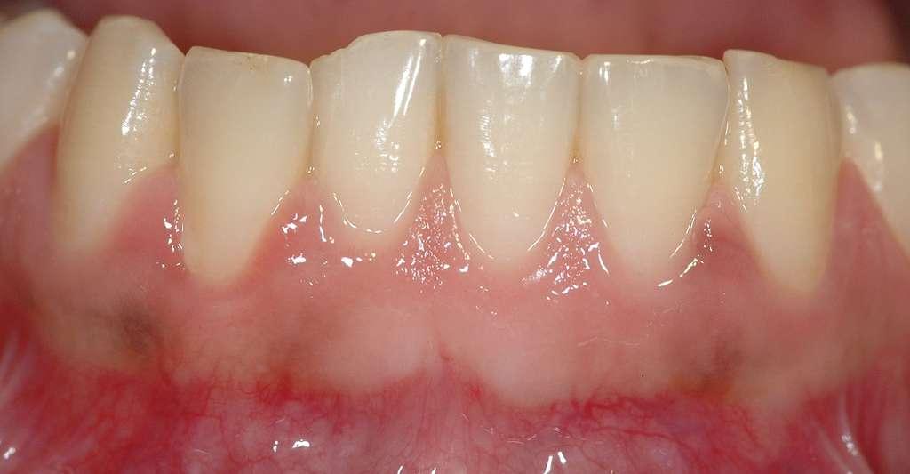 La gingivite provoque un gonflement des gencives. Sur cette photo, des gencives saines. © Mohamed Hamze, Domaine public