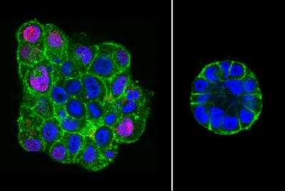 Ces images en fluorescence montrent la différence de structure entre les cellules malignes non comprimées (à gauche) et celles comprimées (à droite), ces dernières prennent une forme bien plus proche d'un acinus sain. © Avec l'aimable autorisation de Daniel Fletcher, université de Californie à Berkeley