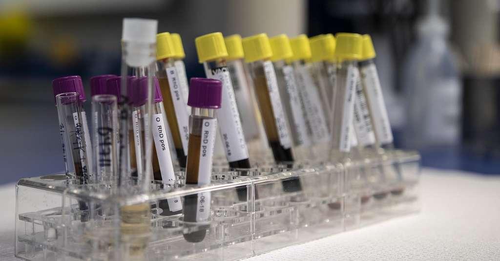 Les chercheurs de l'université d'État du Michigan (États-Unis) comptent désormais étudier les effets d'un régime riche en butylhydroquinone tertiaire (BHQT) sur des échantillons de sang humain. © Bokskapet, Pixabay License