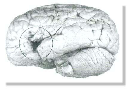 Photographie du cerveau à partir duquel Broca établit la théorie de la localisation des fonctions cérébrales. Ce cerveau est celui du patient ayant perdu l'usage de la parole avant son décès en 1861. La lésion qui produit ce genre de déficit est identifiée par un cercle. © Corsi, 1991, Fig. III. 4
