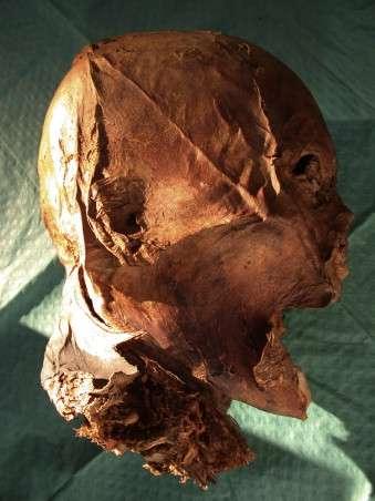 Voici le crâne de la discorde. Si morphologiquement il ressemble à celui d'Henri IV, la génétique pourrait révéler des différences. © Philippe Charlier et al., Forensic Science International