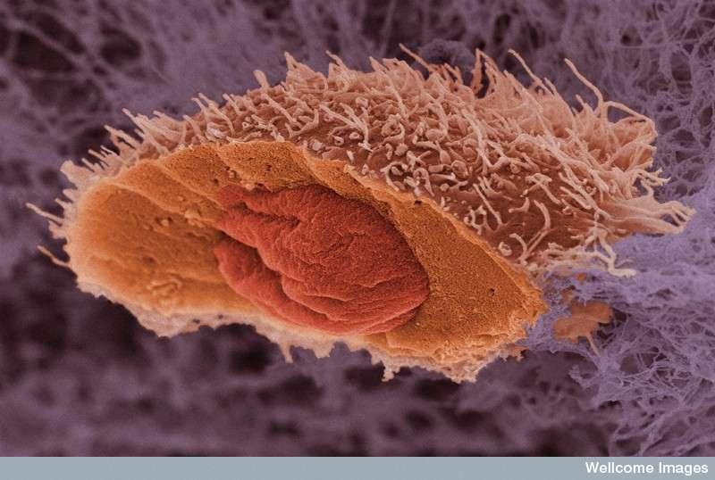 Les cancers de la peau, dont on peut voir une cellule tumorale, ne peuvent pas toujours être soignés. Mais les médicaments anti-PD-1 et anti-PD-L1 pourraient bien traiter efficacement la maladie chez de nouveaux patients, pour qui les autres thérapies se sont montrées inefficaces. © Anne Weston, Wellcome Images, Flickr, CC by-nc-nd 2.0