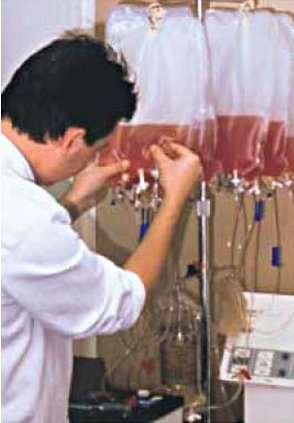 Préparation de la réinjection des lymphocytes infiltrant une tumeur, grâce à un appareillage permettant la concentration et le lavage des cellules. © C. Mathiot, Inserm