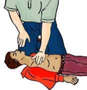 Un appui bras tendus. © Croix-Rouge française, G. Pascaud