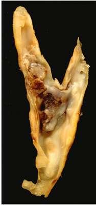Plaque d'athérome dans une carotide. © Ed Uthman, Domaine public