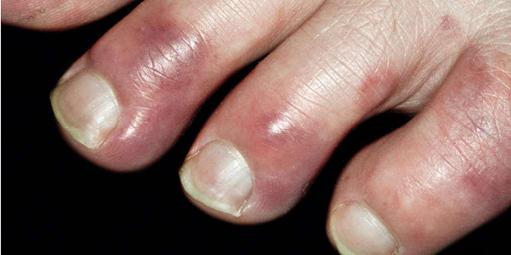 Certains patients avec une Covid-19 longue ont des engelures aux orteils et aux mains, parmi d'autres manifestations dermatologiques. © CC