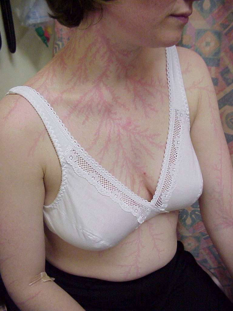 Les personnes foudroyées peuvent présenter des figures de Lichtenberg à la surface de leur peau, marquant le trajet suivi par l'électricité à travers leur corps. © Mahajan et al.