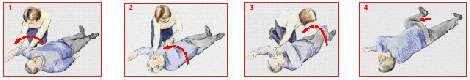 Les gestes de la PLS. © Croix-Rouge française, G. Pascaud