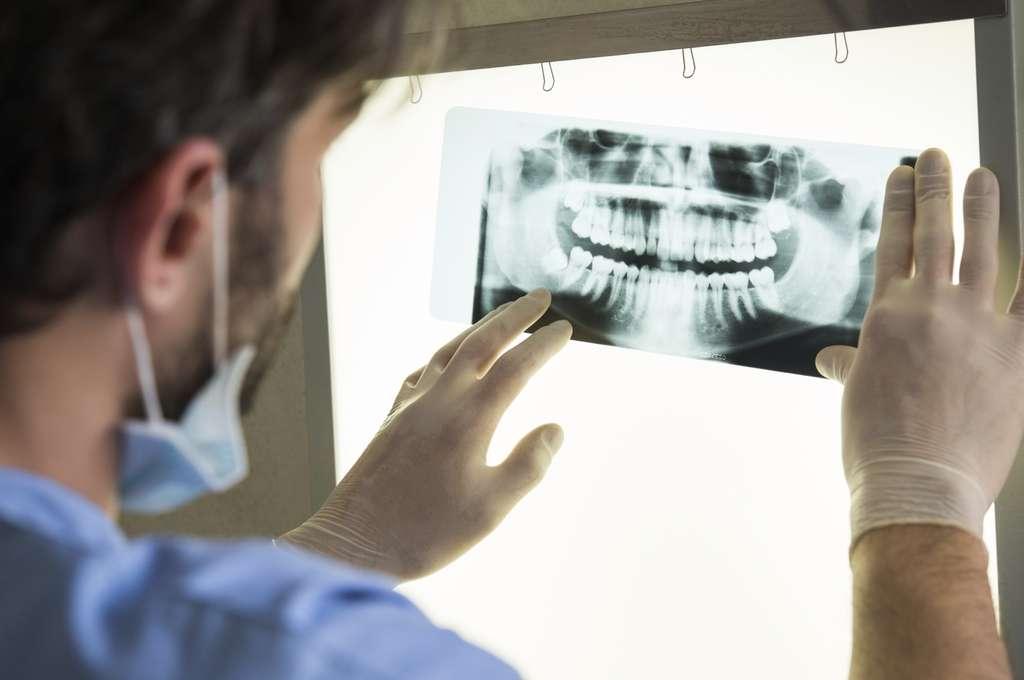 De nouvelles recherches montrent que la parodontite et l'augmentation du risque de développer certains cancers pourraient être liées. © Ridofranz, Istock.com