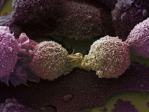 Des cellules du cancer de poumons, ici vues en microscopie électronique à balayage, induisent des changements dans les concentrations des constituants de l'haleine. Ce sont ces modifications qui seraient ciblées par le dispositif. © Wellcome Images, Flickr, cc by nc nd 2.0