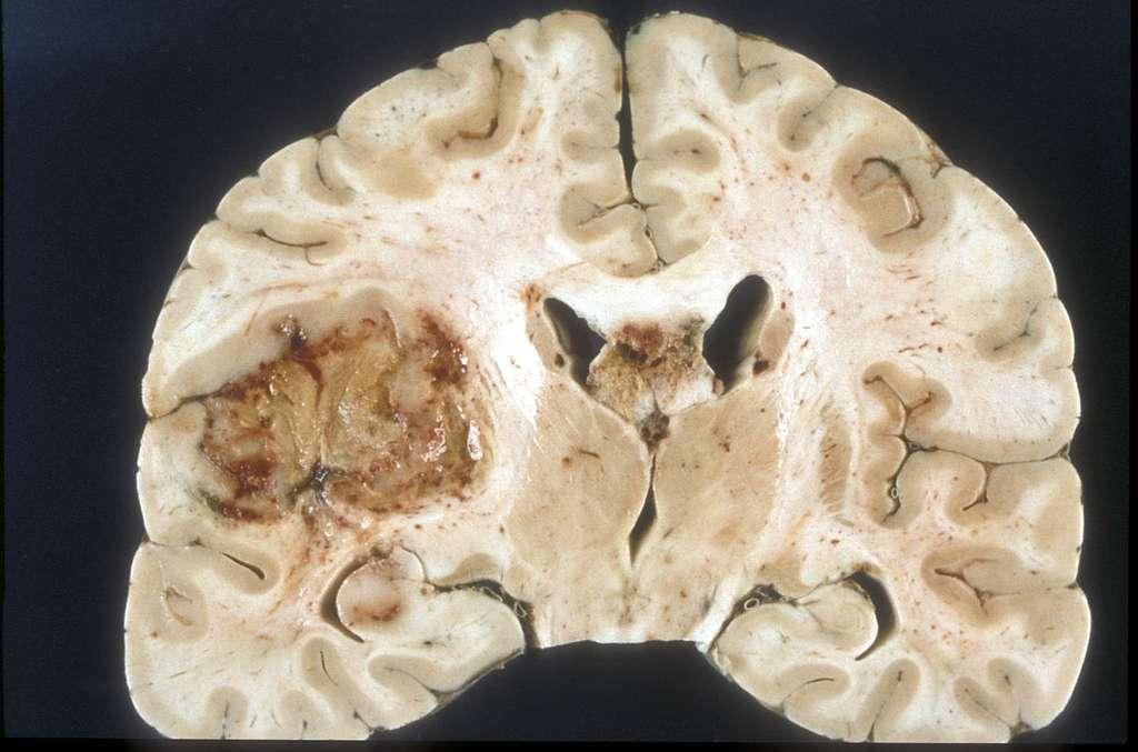 Coupe d'un cerveau atteint de glioblastome multiforme © Wikimedia Commons, Sbrandner