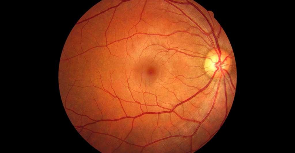 Dans le fond de l'œil, un médecin peut observer, entre autres, le disque optique (point où partent les vaisseaux et le nerf optique). © Left-Handed Photography, Shutterstock