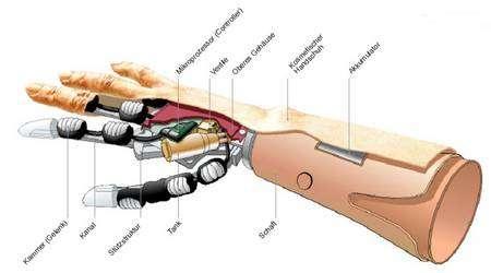 Schéma de la prothèse Fluidhand. Les articulations sont constituées de minuscules coussinets élastiques gonflables (Kammer) à l'aide d'un liquide hydraulique amené par un conduit souple (Kanal) depuis un petit réservoir (Tank). L'ensemble est contrôlé par un processeur (Mikroprozessor) protégé dans un étui (Obreres Gehäuse) et recouvert par la peau artificielle (Kosmetisher Handschuh). La pompe, non visible sur ce schéma, se trouve à côté du réservoir, derrière la soupape (Ventile). La partie mécanique repose sur une structure de soutien (Stützstruktur). Le support (Shaft) porte la batterie (Akkumulator). © Forschungszentrum Karlsruhe