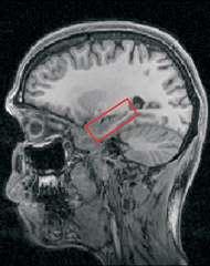 Présent dans chacun des deux hémisphères, l'hippocampe (ici à l'intérieur du rectangle rouge) est impliqué dans la mémorisation des souvenirs à long terme. Il serait aussi important pour construire des images mentales. Crédit : Eleanor Maguire