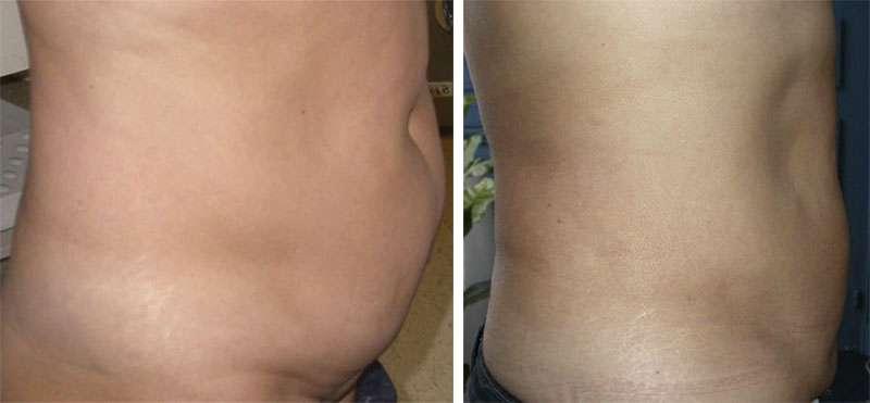 Autre liposuccion du ventre avant et après, vue de profil. © Dr Mitz, tous droits réservés