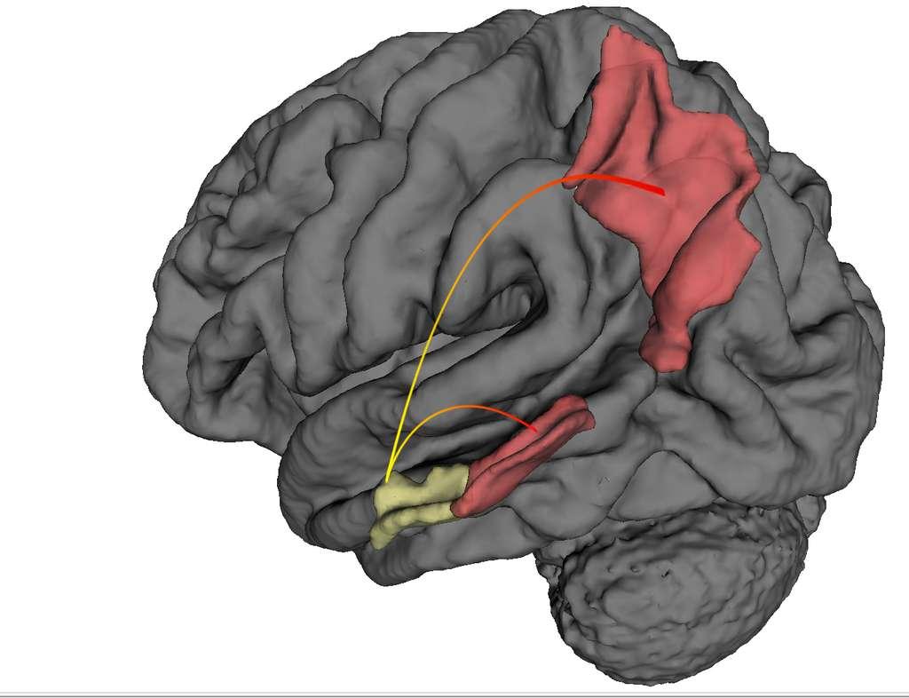 En utilisant une technique d'imagerie par résonance magnétique fonctionnelle à haute résolution, des chercheurs ont montré que la maladie d'Alzheimer prennait naissance dans le cortex entohrinal (jaune) et progressait vers d'autres régions cérébrales (rouge) comme le cortex perirhinal et le cortex pariétal posterieur. © Scott Small, centre medical de l'univesité Columbia.