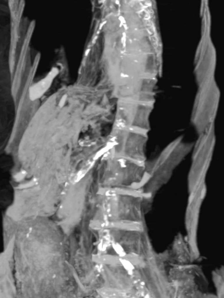Les plaques d'athérome apparaissent en blanc sur cette image du scanner tomodensitométrique de la momie. © Zahi Hawass et Sahar Saleem