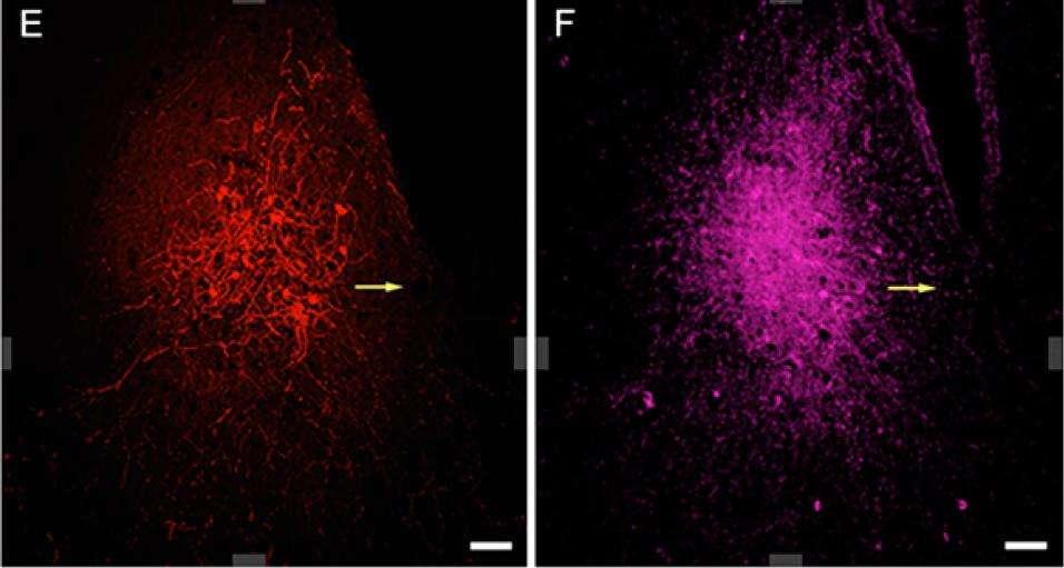 Exemple d'images d'une même région obtenues grâce à l'utilisation simultanée de deux traceurs spécifiquement reconnus par deux anticorps différents. © PNAS