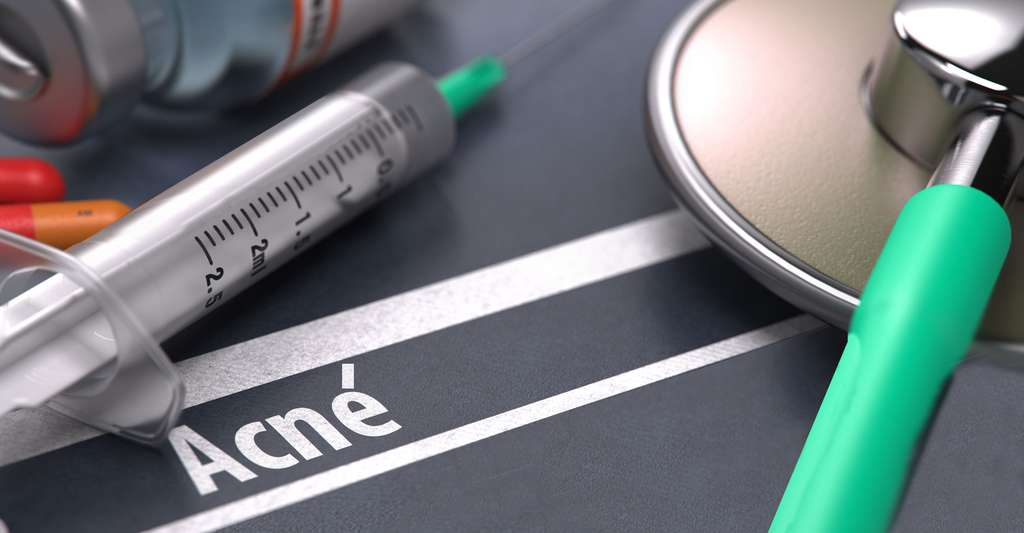 Comment traiter l'acné ? © Tashatuvango - Shutterstock