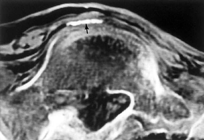 La flèche noire montre la présence d'une calcification située dans l'aorte abdominale. Cliché réalisé en mai 1994. © Murphy W.A. et alii, The Iceman: Discovery and Imaging, RSNA, 2003.