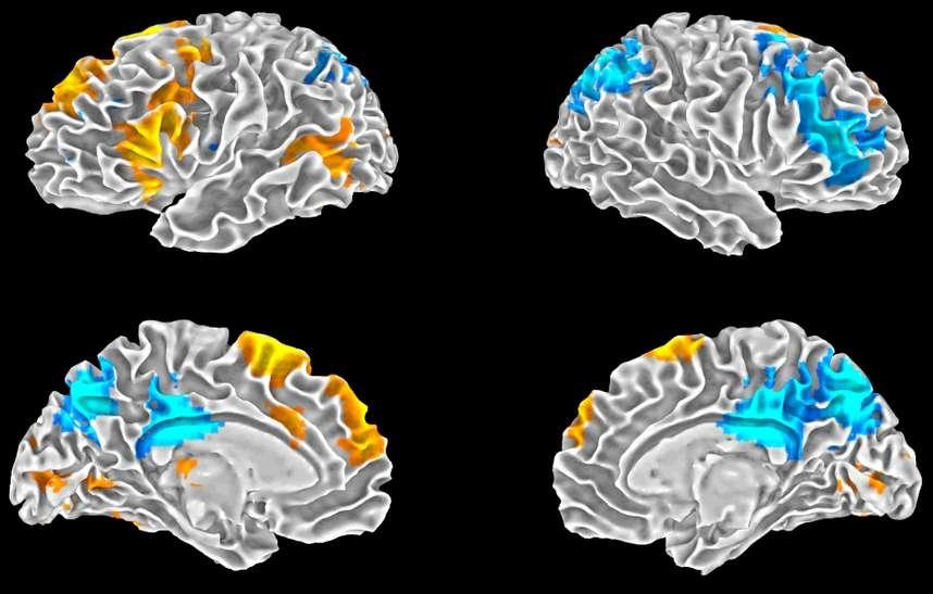 Ces schémas montrent les résultats obtenus par les chercheurs. En orange on peut voir les régions du cerveau qui s'activent au moment de l'improvisation, telles le cortex préfrontal médian. En bleu, ce sont les régions qui perdent en activité dans ce même contexte, dont le cortex préfrontal dorsolatéral. © Scientific Reports