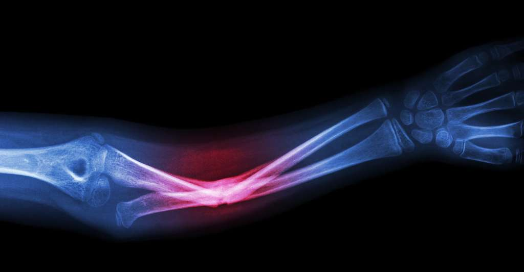 Grâce à l'impression 3D et à une encre rapide à base de matières minérales et élastiques, des scientifiques américains ont fabriqué des os artificiels qui pourraient révolutionner les greffes osseuses et la chirurgie réparatrice. © Puwadol Jaturawutthichai, Shutterstock