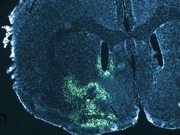 Cette image de microscopie à fluorescence représente une coupe de cerveau de souris au niveau du noyau accumbens, une région impliquée entre autres dans la récompense et la motivation. Le bleu correspond au noyau des cellules et le vert à une région cellulaire où l'enzyme responsable de la dégradation des lipides a été éliminée. © Serge Luquet