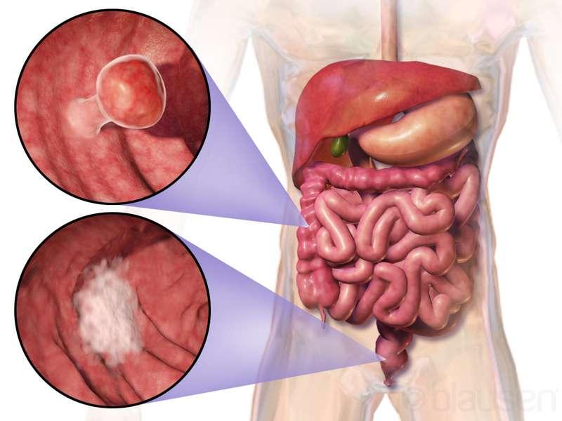 Le cancer du côlon est un exemple de cancer pouvant être dû au grand nombre de divisions cellulaires, et donc au hasard des mutations. © Blausen Medical Communications, Inc., Wikimedia Commons, cc by 3.0