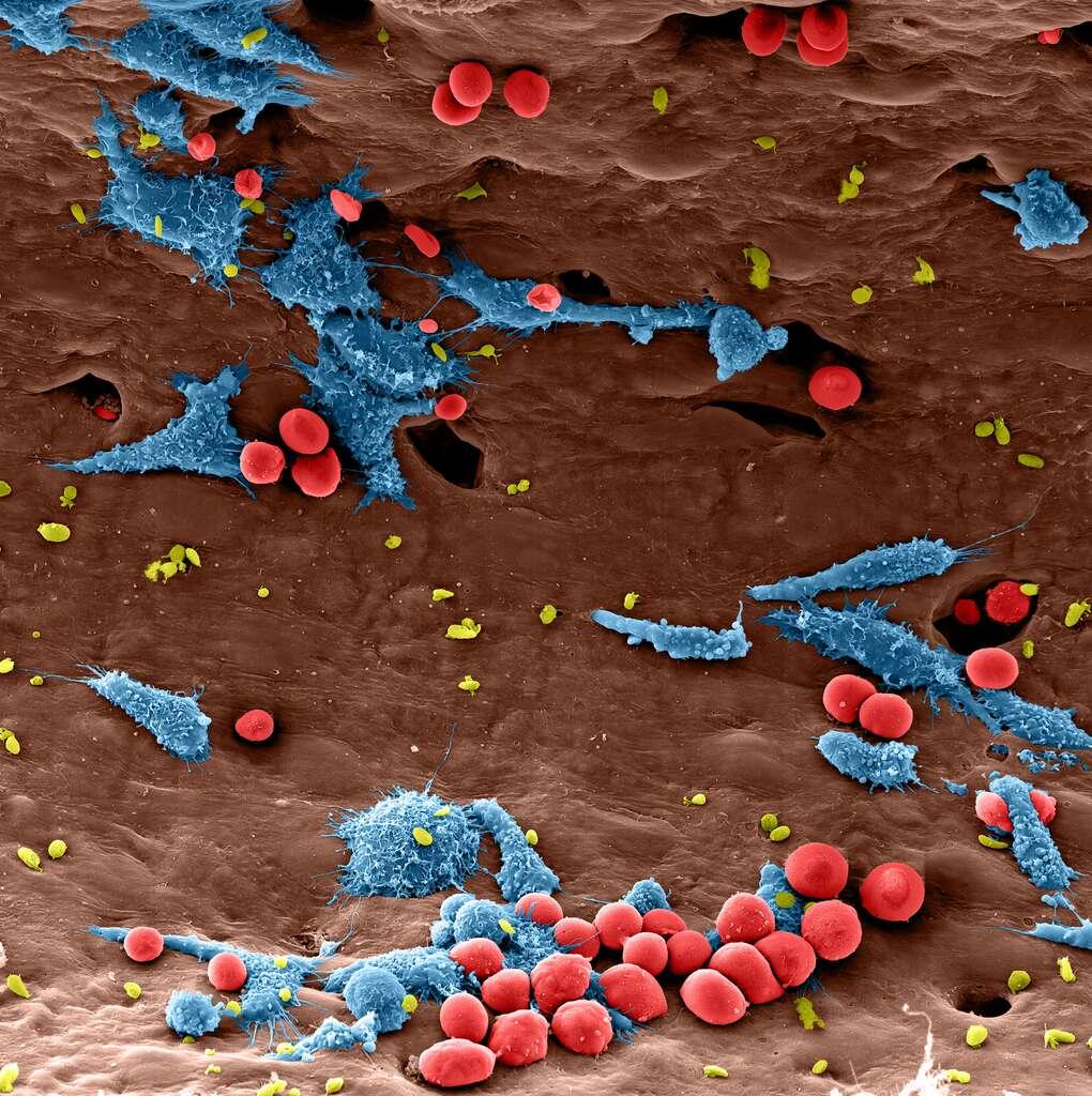 Des macrophages en pleine action