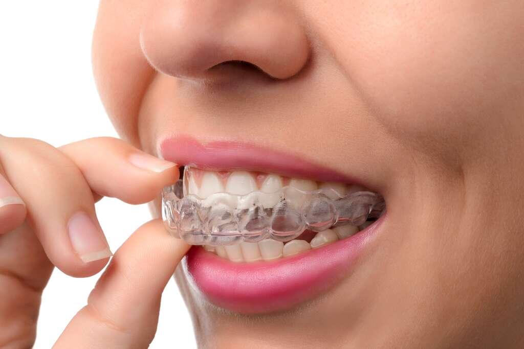 Les appareils dentaires invisibles sont des gouttières transparentes très discrètes et confortables. © pavelsm27