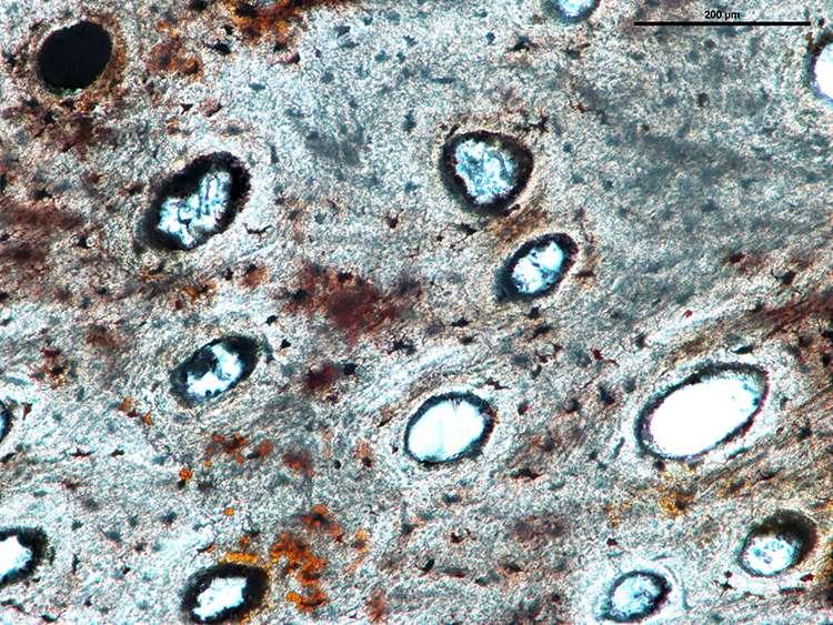 Une coupe de la côte fossilisée du Lufengosaurus observée au microscope. On voit bien les canaux vasculaires où se trouvaient les vaisseaux sanguins alimentant en sang les cellules osseuses. © Robert Reisz