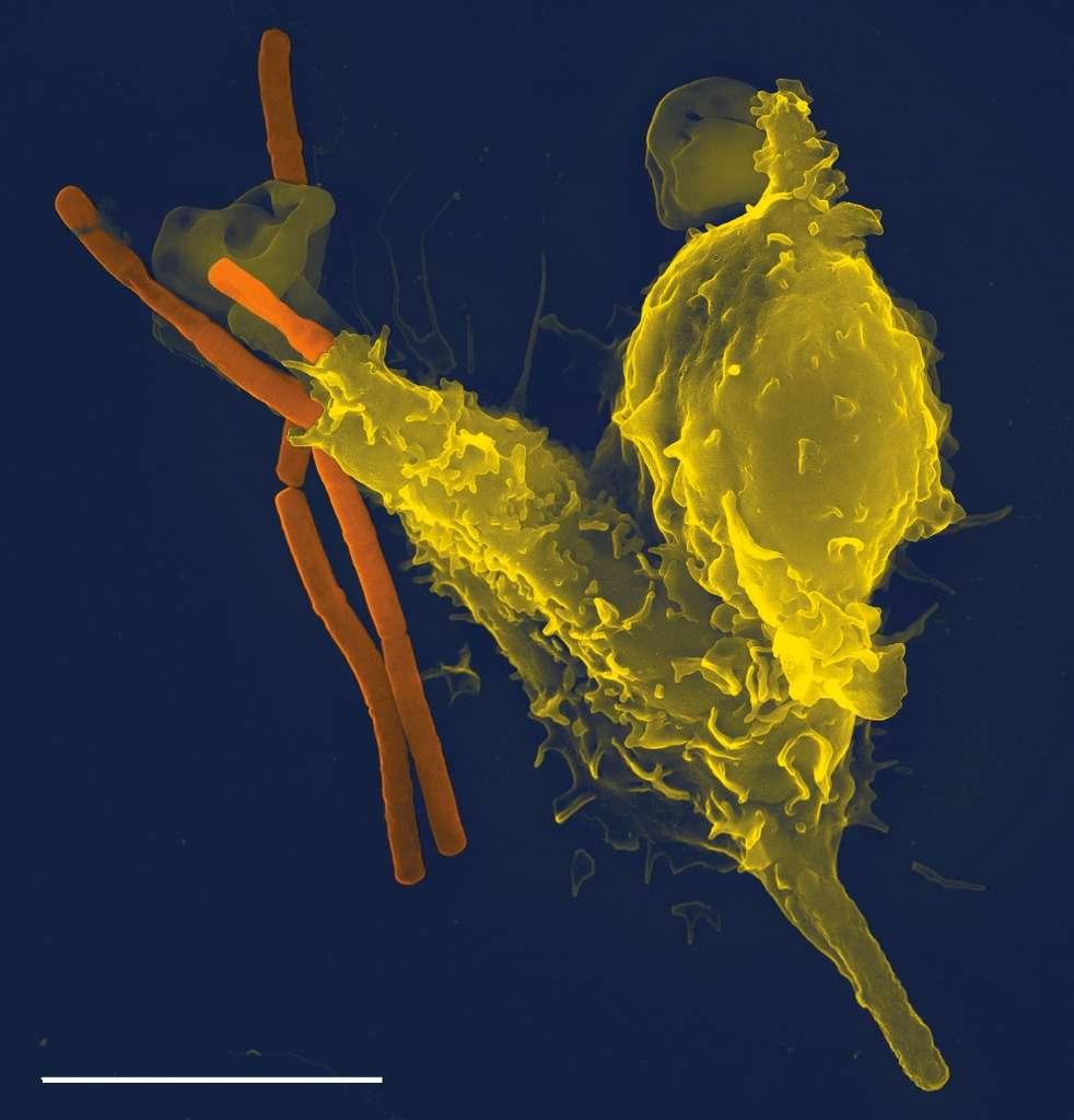Cette cellule étrange, ici colorée en jaune, est un neutrophile : c'est un soldat du système immunitaire en pleine phagocytose. Il est en train de digérer Bacillus anthracis, la bactérie responsable de la maladie du charbon, ou anthrax. La barre d'échelle représente cinq micromètres (µm). Cliquez sur l'image pour avoir accès au diaporama complet. © Volker Brinkmann, Plos Pathogens, cc by 2.5