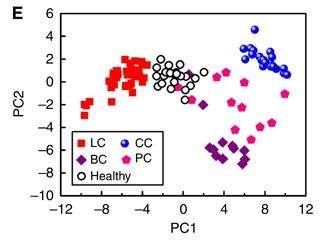 Graphique représentant la répartition suivant les taux de COV (ici représentés par les PC1 et PC2) des patients atteints de différents cancers (LC, cancer du poumon ; CC, cancer du colon ; BC, cancer du sein ; PC, cancer de la prostate), ou de personnes saines (healthy). Les groupes ne se recoupent quasiment pas, indiquant que la méthode de diagnostic par senseur est efficace. © British Journal of Cancer