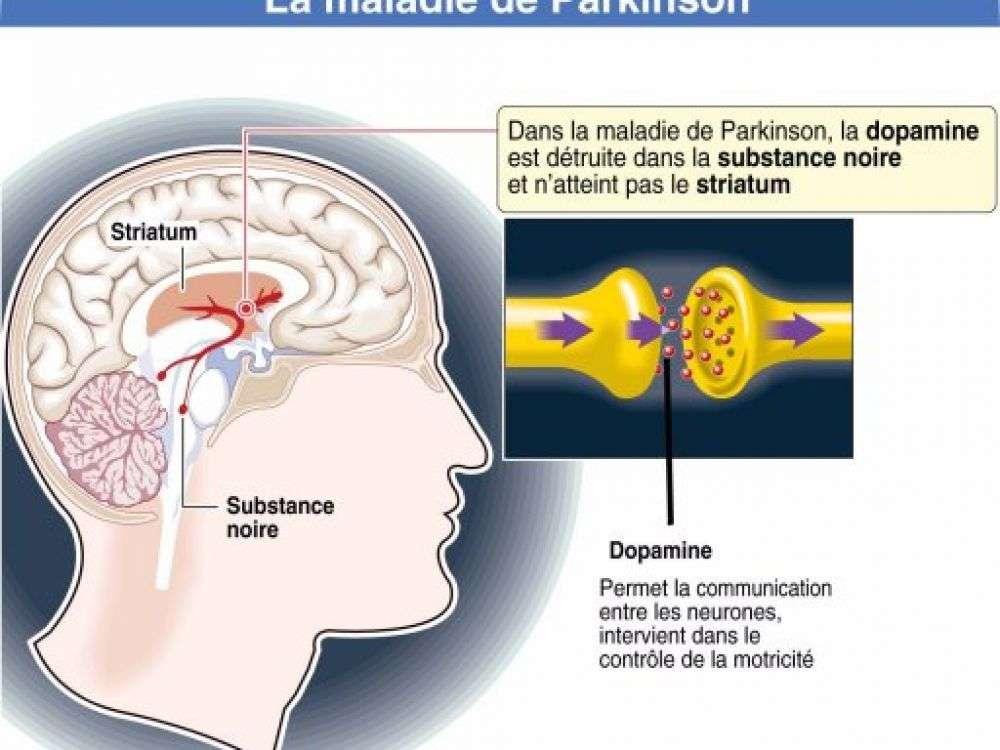 Schéma simplifié de la maladie de Parkinson. © AFP.com, J Hollier, Larousse
