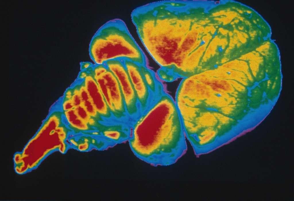 Image numérisée d'un cerveau de poussin, en fausses couleurs