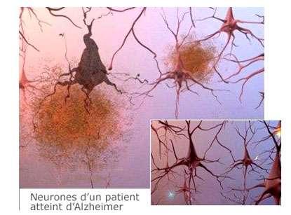Présence de plaques séniles entre les cellules nerveuses. En bas à droite, neurones d'un patient sain. Source: ©2007 Alzheimer's Association. www.alz.org. All rights reserved. Illustrations by Stacy Janis.