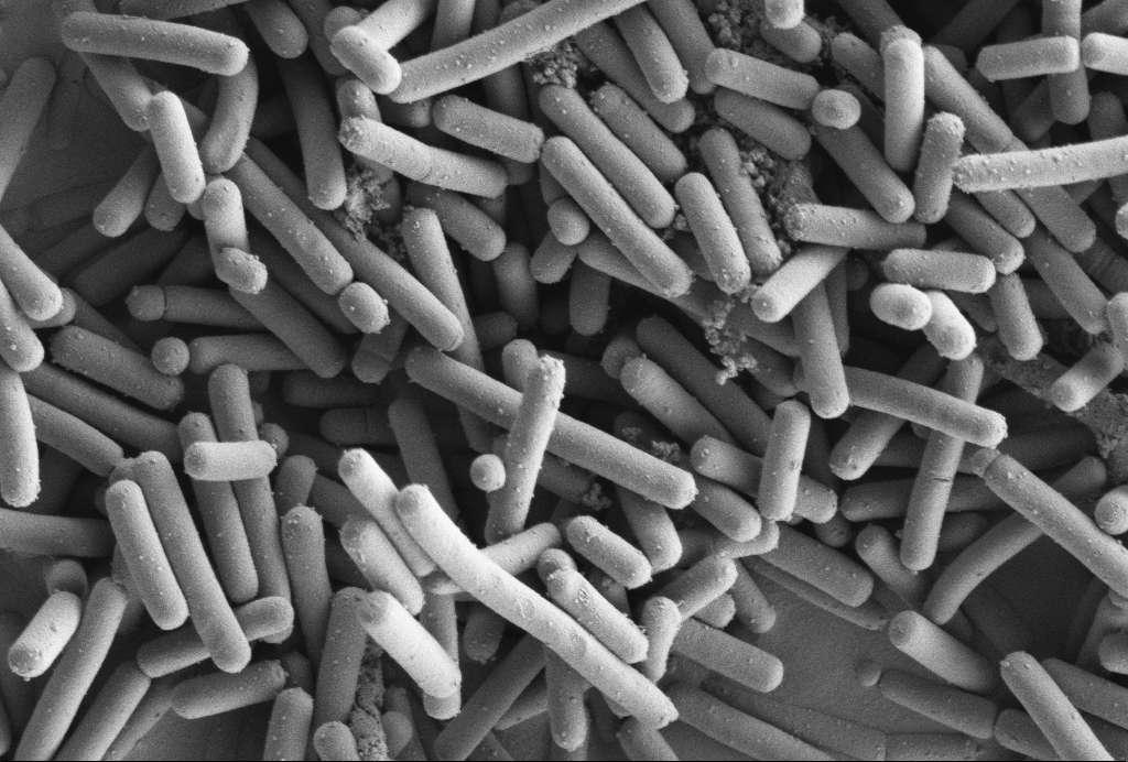 Image de microscopie électronique à balayage de Lactobacillus johnsonii. Cette espèce bactérienne limite le risque de développement d'un lymphome chez la souris. Le mécanisme de cette protection est encore inconnu. © Kathryn Cross, IFR, DP