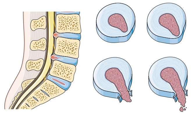 Les étapes de la hernie discale : le disque intervertébral est usé et laisse passer le liquide qui s'y trouve. © SMA