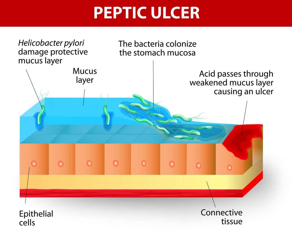 Ulcère gastrique provoqué par Helicobacter pylori : mécanisme d'action. © designua, adobe stock