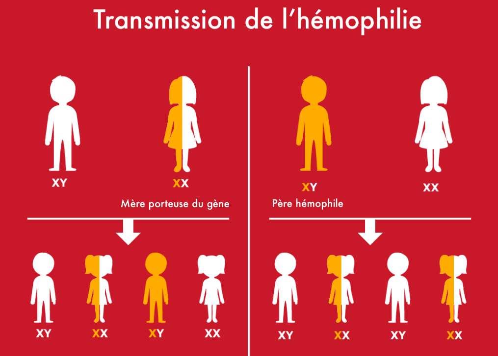Mode de transmission du gène de l'hémophilie : une mère porteuse du gène de l'hémophilie a une chance sur deux d'avoir un fils hémophile. Un père hémophile ne peut pas avoir un garçon hémophile mais peut transmettre le gène à sa fille. © Céline Deluzarche, Futura Sciences